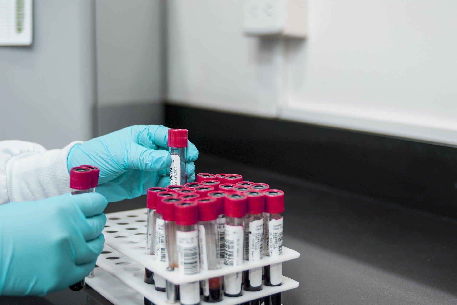 Nonfasting Lipid Testing